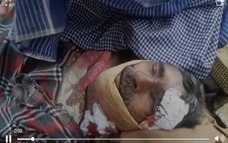ریچھ نے حملہ کرکے 65 سالہ شخص کی جان لے لی