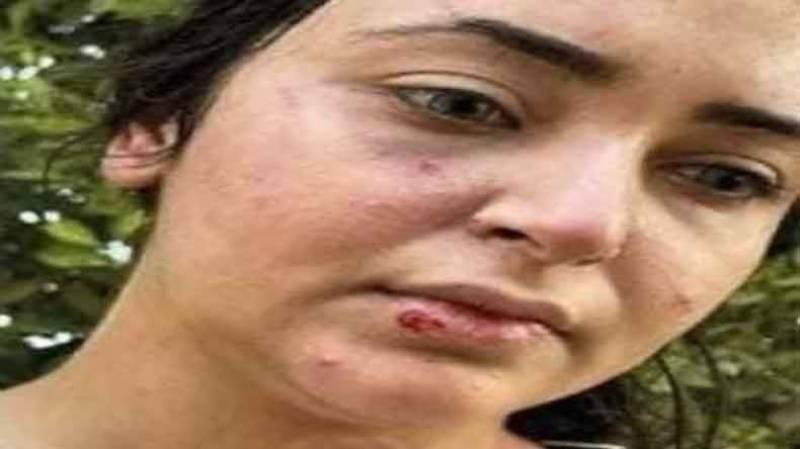 مصری ، خاتون، تشدد